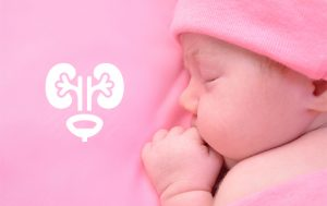 böbrek genişlemesi çocuk ürolojisi